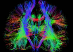 Whole brain tractography